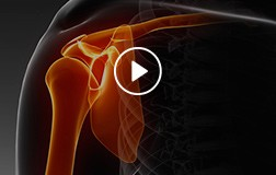 Patient Education Videos of J. Kristopher Ware, MD - Orthopedic Surgeon - Sports Medicine Specialist
